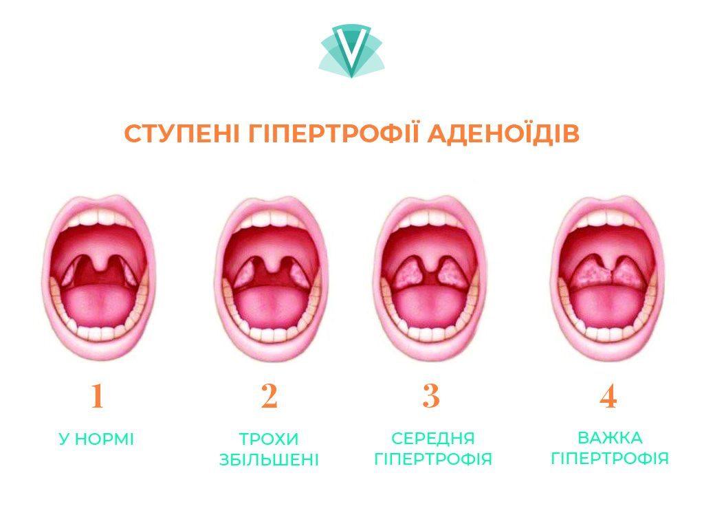 Видалення аденоїдів-1