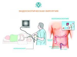 Признаки наличия опухоли сигмовидной кишки, методы лечения-1