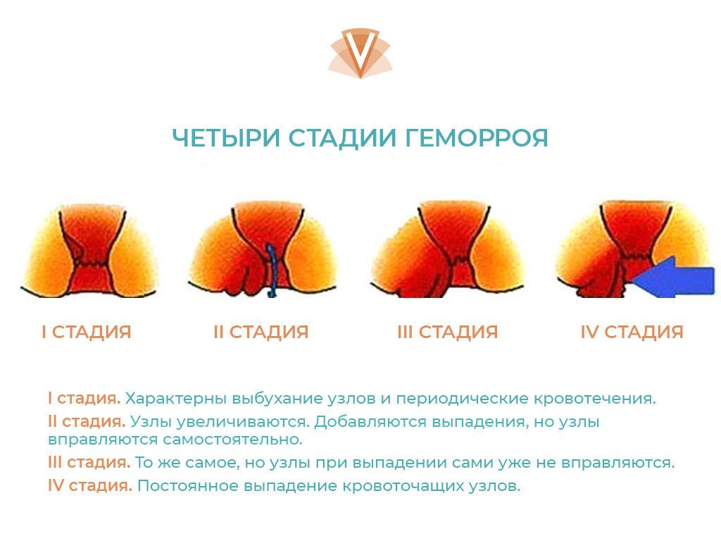 Эффективное лечение внутреннего геморроя-2