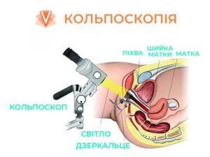 Кольпоскопія шийки матки-1
