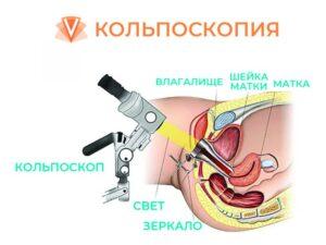 Кольпоскопия шейки матки-1