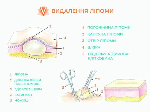 Видалення ліпоми-2