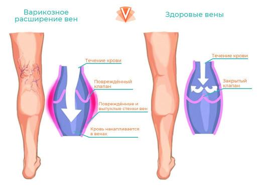 Лечение варикоза-1